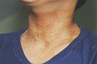 Fig 1. Hyperpigmented skin.
