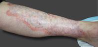 Fig. Plaque on leg.