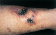 Fig 1. Skin necrosis