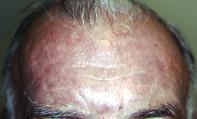 Fig 1. Slate-grey pigmentation