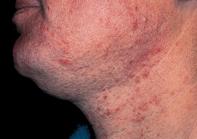 Fig 1. Irritable rash