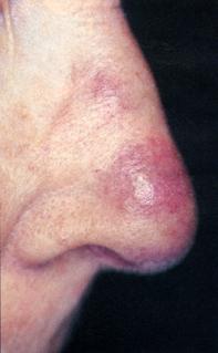 Fig 1. Nodule on nose